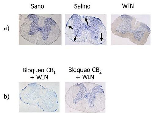 Figure 1. a) In animals treated with placebo appear, aggregates of cells that release toxic substances that do not appear in the mice treated with WIN. b) By blocking the CB1 receptor WIN this effect is lost. Source: De Lago et al. Neuropharmacology. 2012.