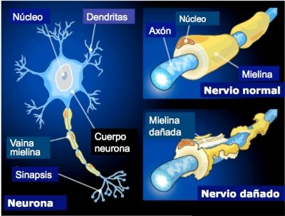 The image illustrates demyelination of axons of neurons that occurs in MS. Source: neurodidacta.es